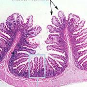 Maladie de Chron, colite hémorragique, obésité, diabète, autant de soucis de santé qui ont pour origine l'état de nos intestins. Pour régler ça, le SynerLife des laboratoires SynerJ-Health propose un complexe de 14 probiotiques et prébiotique.